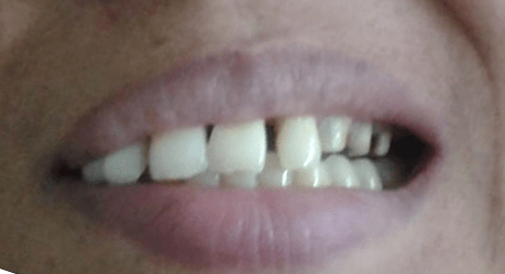 Crowns treatment - before Pediatric Dentistry, Orthodontics Specialist Shree Dental Clinic in Pimple Saudagar | pediatric dentistry, orthodontics specialist shree dental clinic in pimple saudagar