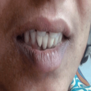 dental implant -after Orthodontics Specialist, Dentist Shree Dental Clinic in Pimple Saudagar | orthodontics specialist, dentist shree dental clinic in pimple saudagar